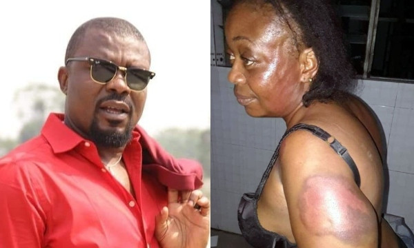 Nigerian lawmaker allegedly beats woman, forces her to walk on the